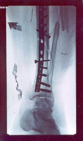 X-ray picture of my shattered leg with a metal strip attached.