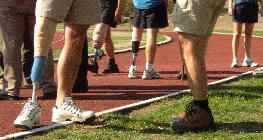 keuze wel of niet prothese