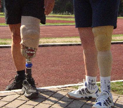 Naked and dressed artificial legs ext toeach other. (photo: Gerard Schoutsen)