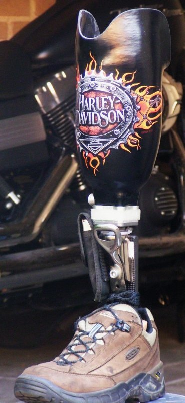 new prosthesis with Harley-Davidson logo